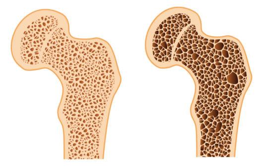 controllo-osteoporosi-cura-carpignano